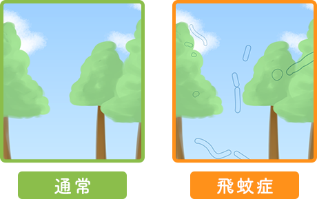 飛蚊症の見え方比較